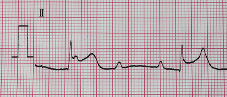 infarction: Emergency Cardiology. ECG with acute inferior wall myocardial infarction.