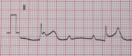 myocardial: Emergency Cardiology. ECG with acute inferior wall myocardial infarction.