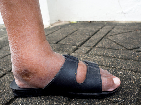 The feet of man with diabetes, dull and swollen. Due to the toxicity of diabetes.