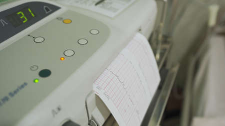 closeup view of cardiotocography machine monitoring the fetal heart and printing of cardiogram report in labor ward Zdjęcie Seryjne