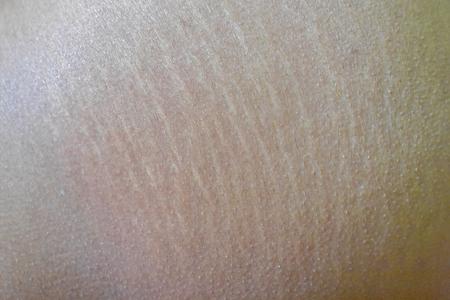 A pele não está se expandindo, Padrão na pele, área dos quadris, Talvez não sejam as meninas, Expansão da pele Foto de archivo - 84486826