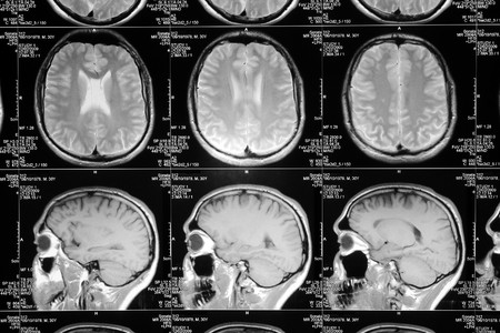 tumor: black and white head magnetic resonance image Stock Photo