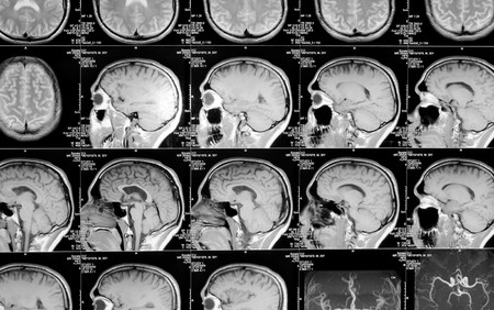 black and white head magnetic resonance image Stock Photo