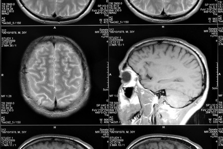 black and white head magnetic resonance image Stock Photo