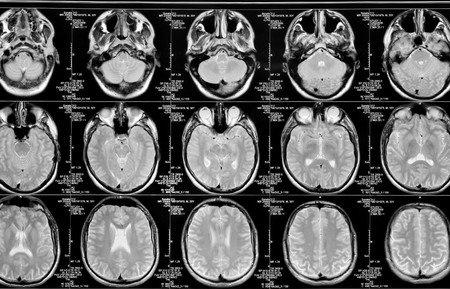 brainpan: black and white head magnetic resonance image Stock Photo