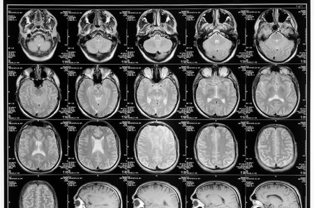 black and white head magnetic resonance image photo