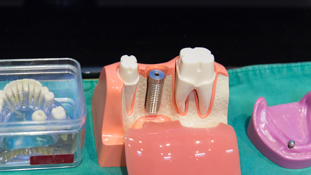 substructure: the implant substructure model for teeth treatment demonstration Stock Photo