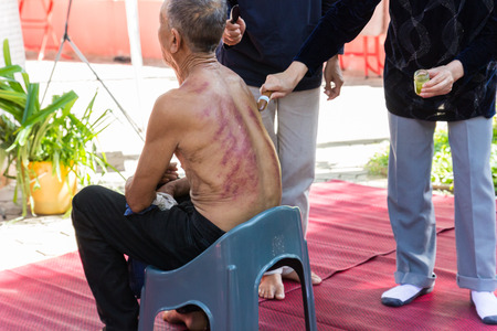 Chiangmai, Thailand - November 8, 2014: The teacher demonstrate guasa technique which is the Alternative medicine for skin detoxifying on mans back Editorial