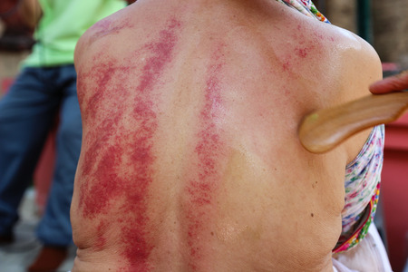 Chiangmai, Thailand - December 13, 2014: The teacher demonstrate guasa technique which is the Alternative medicine for skin detoxifying on people's back