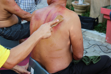 Chiangmai, Thailand - December 13, 2014: The teacher demonstrate guasa technique which is the Alternative medicine for skin detoxifying on peoples back
