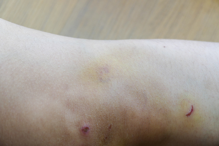 contusion: the bruise and contusion on woman knee