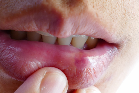 bruise: bruise at the lip of the mouth