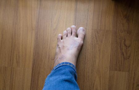 rash: picaz�n eczema erupci�n en la piel del pie Mujer