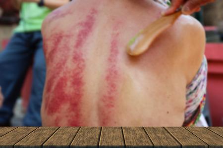 mensen demonstreren Guasa methode die het alternatieve geneeswijzen voor de huid ontgiften op de mens terug (blur achtergrond met houten tafelblad voor weergave of montering uw product) Stockfoto