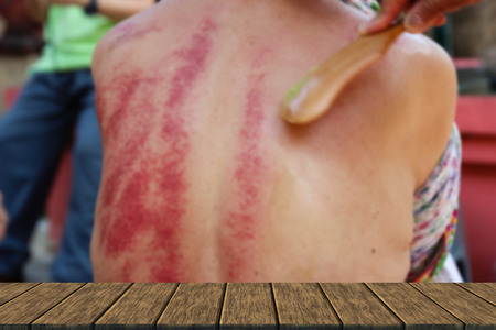 people demonstrate guasa method which is the alternative medicine for skin detoxifying on mans back (blur background with wood table top for display or montage your product) Stock Photo
