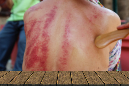 back rub: people demonstrate guasa method which is the alternative medicine for skin detoxifying on mans back (blur background with wood table top for display or montage your product) Stock Photo