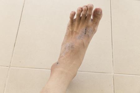 sarpullido: picaz�n eczema erupci�n en la piel del pie Mujer