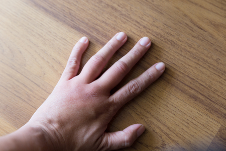 sting: swollen hand from wasp insect sting Stock Photo