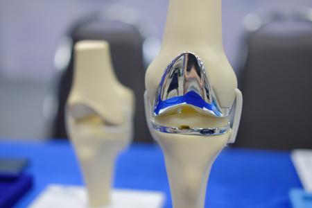 modèle d'articulation du genou artificiel après chirurgie de remplacement