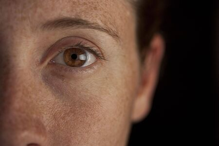 A closeup shot of a freckled face with a brown eye against a black background Stock Photo