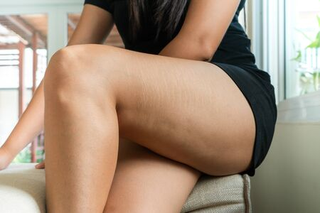 fat cellulite and stretch mark on Tan skin woman leg at home, women diet style concept Banco de Imagens
