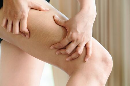 Female hand holds fat cellulite and stretch mark on leg at home, women diet style concept Banco de Imagens