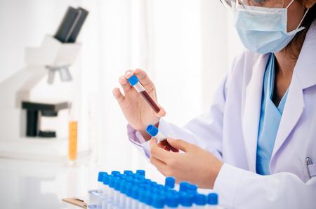 equipos medicos: close up de científico de la celebración y el examen de la muestra de sangre en el laboratorio