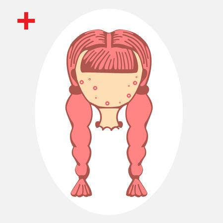 pubertad: Adolescente con un grano en la mejilla. Acn� com�n. El acn� de un 14-a�os de edad, durante la pubertad. Rub�ola. Erupci�n en la cara y el cuerpo. Vectores