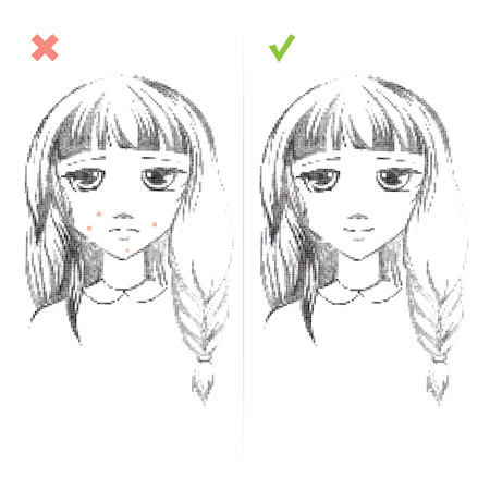 puberty: Freehand drawing medical icon Acne.Teenage girl with a pimple on her cheek. Acne vulgaris. Acne of a 14-year-old during puberty. Rubella. Rash on face. On white background. Eps 8
