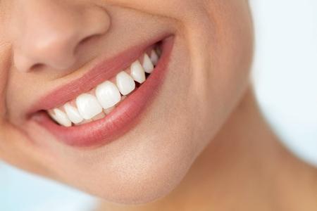 하얀 치아와 아름 다운 미소입니다. 자연 통 통 완전 입술과 건강 한 완벽 한 미소로 입 웃는 여자의 근접 촬영. 치아 미백, 치과 건강 및 립 케어 개념.