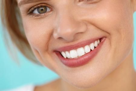 Mooie glimlach. Close-up Van Mooie gelukkig lachende vrouw met witte tanden en fris gezicht. Schoonheid Meisje Met Make-up Lip Balm Op Haar volle lippen. Dental Health, Lip Care Concept. Hoge Resolutie Afbeelding