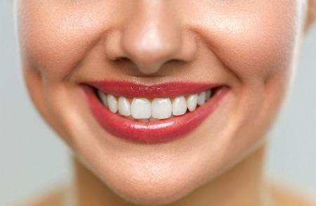 Schönes Lächeln mit weißen Zähnen. Nahaufnahme Der Lächelnden Frau Mund mit natürlichen Pralle vollen Lippen und gesunde Perfect Smile. Teeth Whitening, Zahnpflege und Lippenpflege Konzepte. Hohe Auflösung Bild Standard-Bild