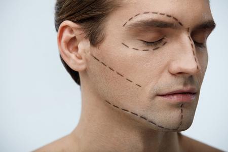 整形手術。操作の前に顔に黒い外科線でハンサムな若い男の肖像画。美容治療の前に滑らかな肌に線が美しい男性のクローズ アップ。高分解能
