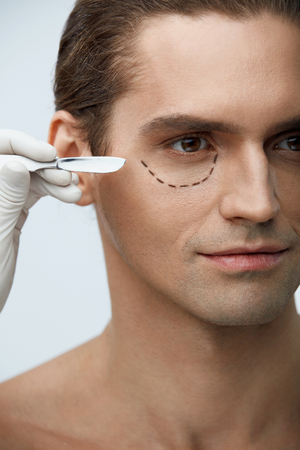 Plastic Surgery. Closeup Of Handsome Male Face With Black Marks On Skin Under Eye. Portrait Of Young Man With Lines Getting Plastic Operation On Eyelids, Facial Beauty Procedure. High Resolution Stock Photo