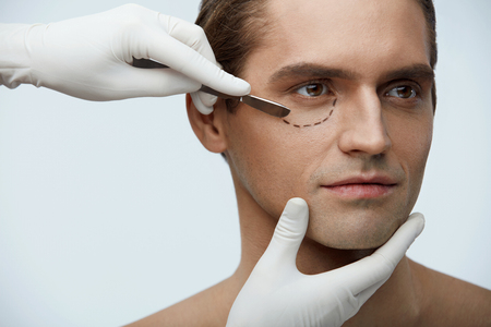 Plastic Surgery. Portrait Of Handsome Man With Black Lines On Beautiful Face And Surgeon Hands In Gloves Holding Scalpel Near Male Eyelids. Blepharoplastic Operation, Beauty Concept. High Resolution