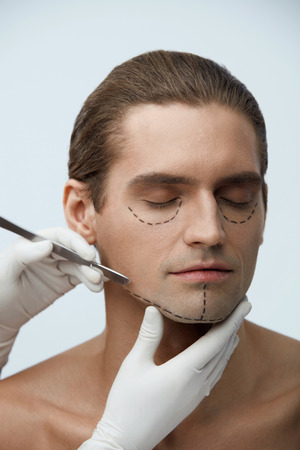 eyelid: Plastic Surgery. Closeup Of Handsome Young Man With Black Lines On Facial Skin And Surgeon Hand With Scalpel Near Cutting Lines On Attractive Male Face Before Skin Lifting Operation. High Resolution