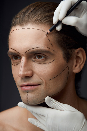 Cosmetology. Portrait Of Handsome Young Man With Black Lines On Facial Skin. Closeup Of Hands Drawing Surgical Line On Attractive Male Face Before Beauty Operation. Plastic Surgery. High Resolution