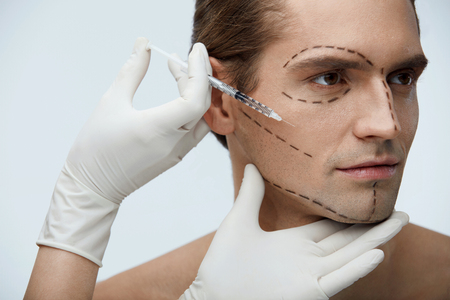Plastic Surgery. Portrait Of Handsome Young Male With Black Surgical Lines On Face And Doctors Hand With Syringe Doing Injections In Mans Facial Skin. Beauty Treatment Concept. High Resolution