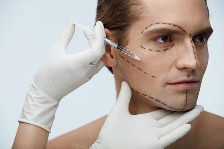 Plastische chirurgie. Portret van knappe jonge man met zwarte chirurgische lijnen op gezicht en Doctor's Hand met spuit Doet injecties In gezichtshuid van man. Schoonheidsbehandeling concept. Hoge resolutie Stockfoto