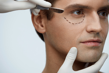 Plastic Surgery. Closeup Of Handsome Male Face With Black Marks On Skin Under Eye. Portrait Of Young Man With Lines Getting Plastic Operation On Eyelids, Facial Beauty Procedure. High Resolution Фото со стока