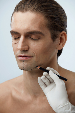 Facial Beauty Operation. Portrait Of Handsome Man With Black Lines Before Plastic Surgery. Closeup Of Hand With Pencil Drawing Line On Attractive Male Face. Cosmetology And Beauty. High Resolution