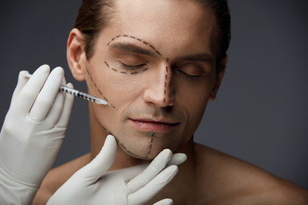 Facial Beauty Injections. Closeup Of Handsome Male With Black Lines On Beautiful Face Getting Filler Injection. Doctors Hand With Syringe Injecting Mans Face Skin. Plastic Surgery. High Resolution