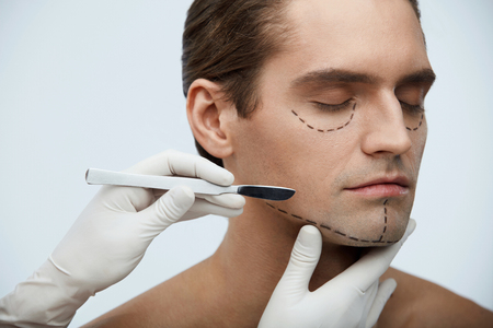 Plastic Surgery. Closeup Of Handsome Young Man With Black Lines On Facial Skin And Surgeon Hand With Scalpel Near Cutting Lines On Attractive Male Face Before Skin Lifting Operation. High Resolution