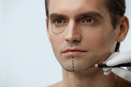 Portrait Of Handsome Young Man With Lines On Face Before Plastic Surgery Operation. Closeup Surgeon Hand Applying Black Line With Pencil On Male Patient Skin. Facial Beauty Procedure. High Resolution