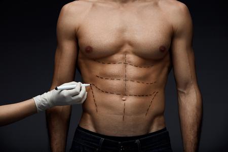 人間の体。男のクローズ アップの美しさの操作の前に肌に腹筋、筋肉胴や鉛筆の線で体をフィットします。手は男性の患者さんの肌に手術線を描く