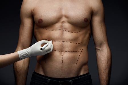 Menselijk lichaam. Close-up van Man's Fit lichaam met Abs, gespierde torso en potlood lijnen op de huid voor schoonheid operatie. Hand tekening chirurgische lijnen op mannelijke patiënt huid. Plastische chirurgie. Hoge resolutie Stockfoto