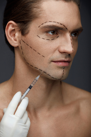Plastic Surgery. Handsome Man With Lines On Face Receiving Skin Lifting Puncture, Filler Injection. Closeup Of Surgeon Hand Doing Facial Beauty Injections On Male Patient. Cosmetology. High Resolution