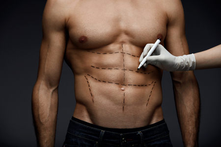 Plastic Surgery. Closeup Of Young Mans Fit Torso With Surgical Lines On His Body Before Beauty Operation. Doctors Hand In Sterile Glove Drawing Black Marks On Male Patient Body. High Resolution