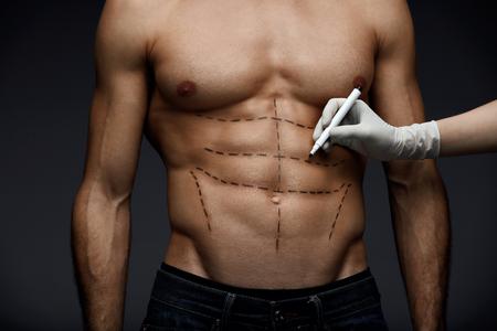 Plastische Chirurgie. Nahaufnahme des Sitz-Torsos des jungen Mannes mit chirurgischen Linien auf seinem Körper vor Schönheits-Operation. Hand Doktors im sterilen Handschuh, der schwarze Markierungen auf männlichem geduldigem Körper zeichnet. Hohe Auflösung Standard-Bild - 75307752
