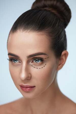 eyelids: Plastic Surgery Operation. Closeup Beautiful Young Woman Face With Fresh Skin And Perfect Makeup On White Background. Female Face With Black Surgical Lines On Eyelids And Under Eyes. High Resolution